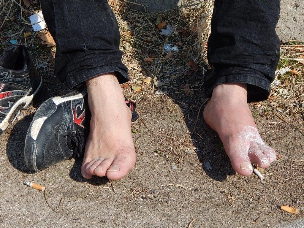 Кракът на Гюлахмед, намазан с паста за зъби. Снимка: Татяна Ваксберг. Всички права запазени.