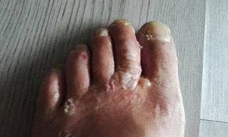 Кракът на Гюлахмед без паста за зъби. Снимка: Гюлахмед.
