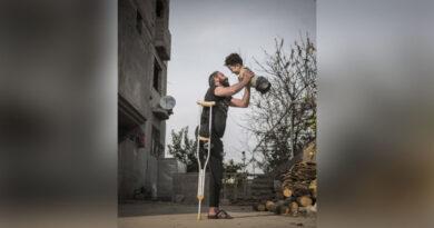 Разтърсващата фотография на еднокрак сирийски баща, държащ сина си, роден без долни или горни крайници, получи световно отличие